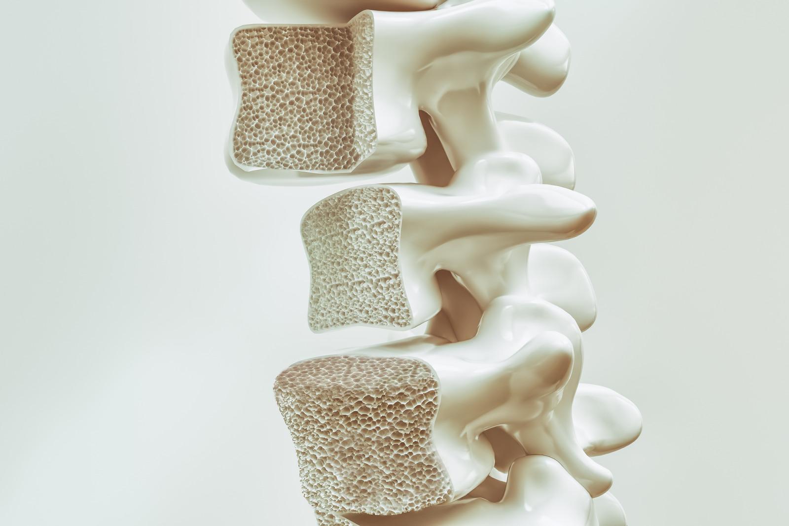 Síntomas y tratamiento de Andulación para la Osteoporosis