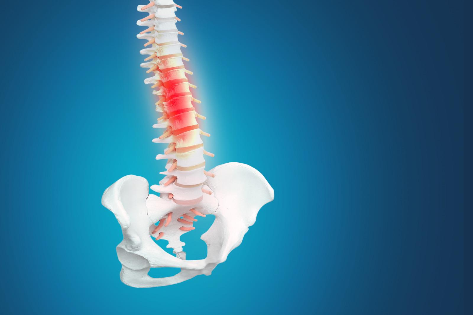 Síntomas y tratamiento de Andulación para la Protusión discal