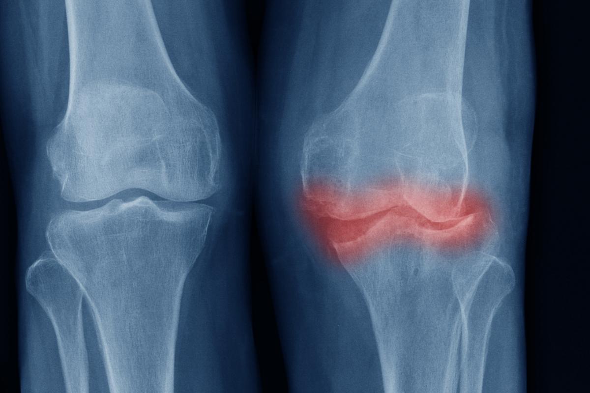 Artrosis - enfermedades reumáticas
