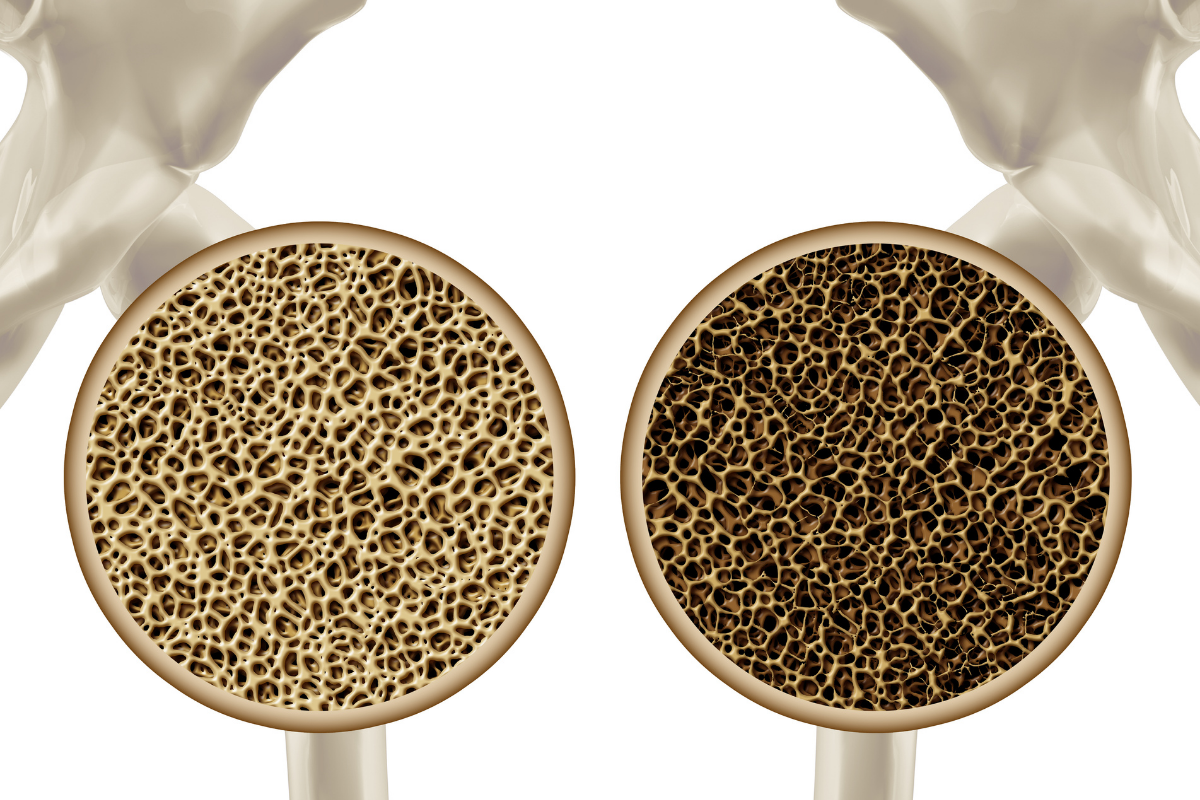Osteoporosis - Enfermedades reumáticas