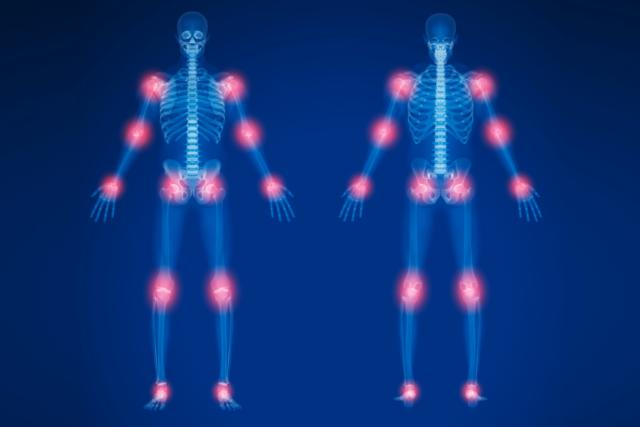 Enfermedades reumáticas: Artrosis y artritis